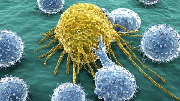 shutterstock_cancer cells_11