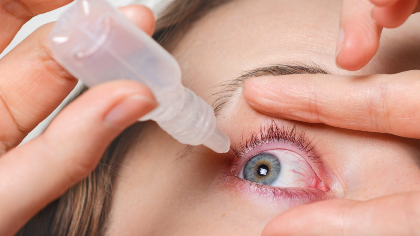 Close up shot of female pours drops in red eye, has conjuctivitis or glaucoma, bad eyesight and pain. Eyes pain treatment concept. Woman cures red blood eye
