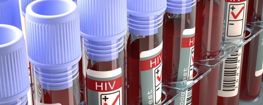 "Molecular Scissors"" May Cut Off Diseases Like HIV"